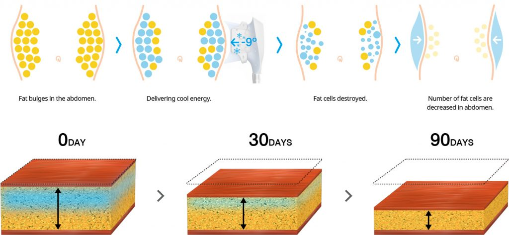 fat freezing process