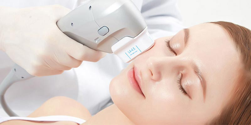 ultherapy ultraformer